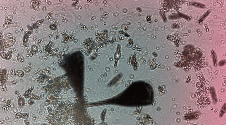 IBMResearch scientists have developed a way to monitor the health and behavior ofplankton, to get an understanding of the overall health of a water system