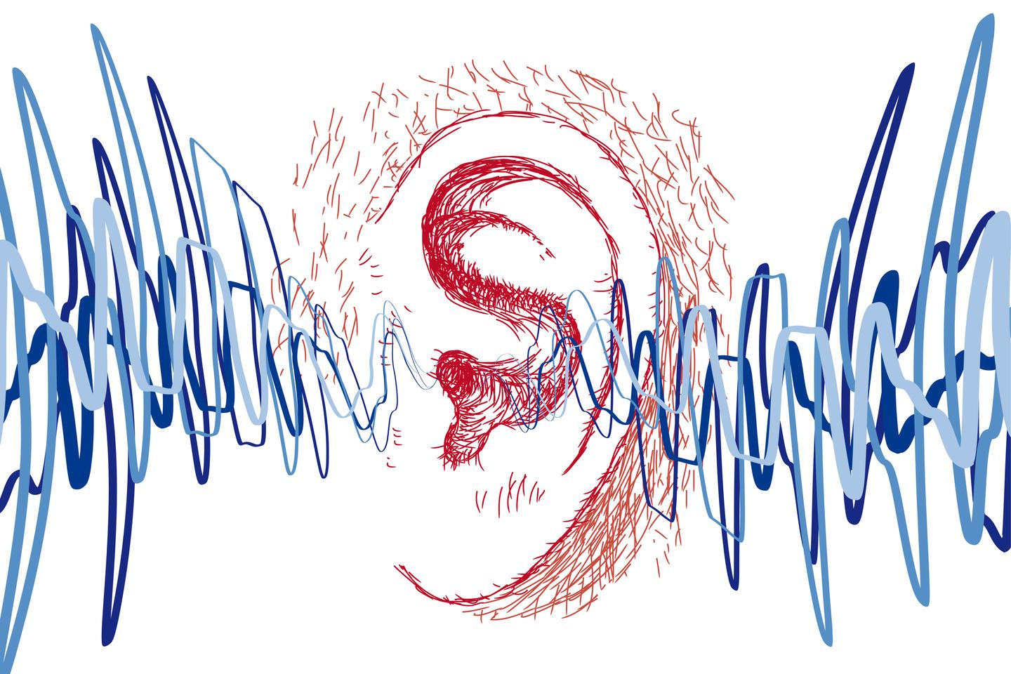 Although an association is becoming clear, there is no good evidence so far suggesting COVID-19 directly causes hearing problems
