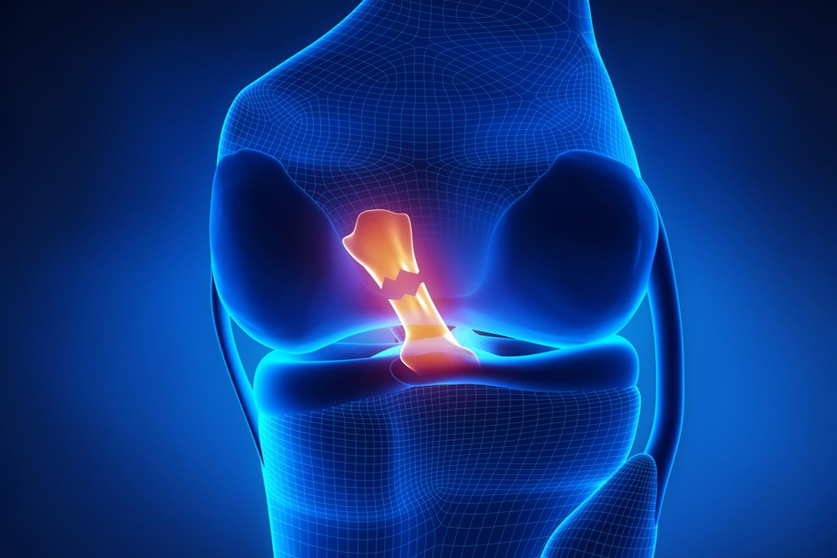 An illustration depicting a ruptured ACL (Image: Shutterstock)