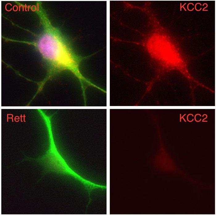 In this composite image, a human nerve cell derived from a patient with Rett syndrome shows significantly decreased levels of KCC2 compared to a control cell