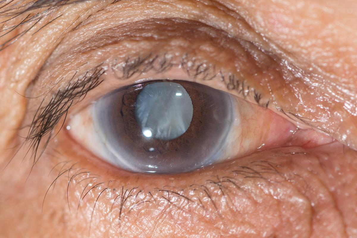 A prototype sensor developed at UW is designed to be permanently placed in a person's eye to monitor for changes in eye pressure (Photo: Shutterstock)