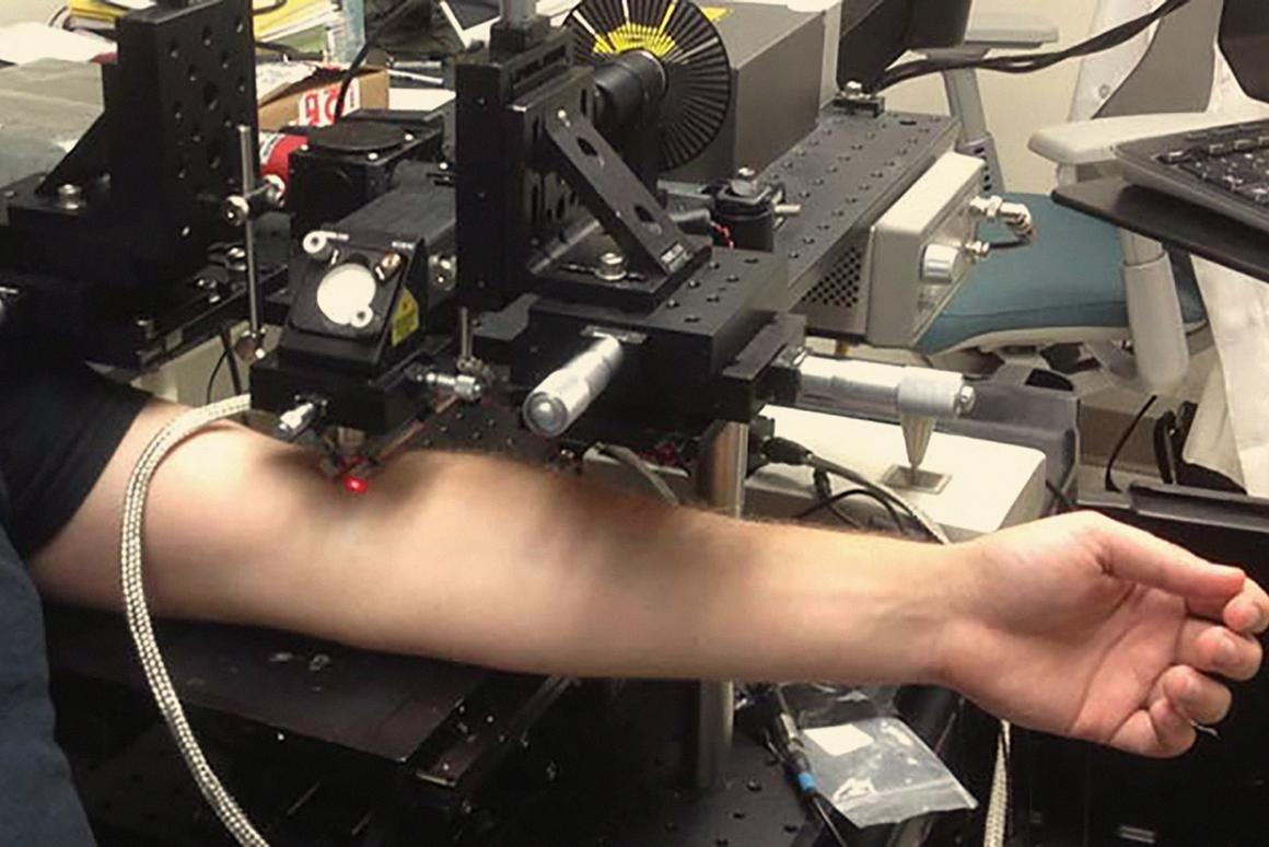 TheCytophone laser/ultrasound-based device in action detecting circulating tumor cellsin the blood of patients with melanoma