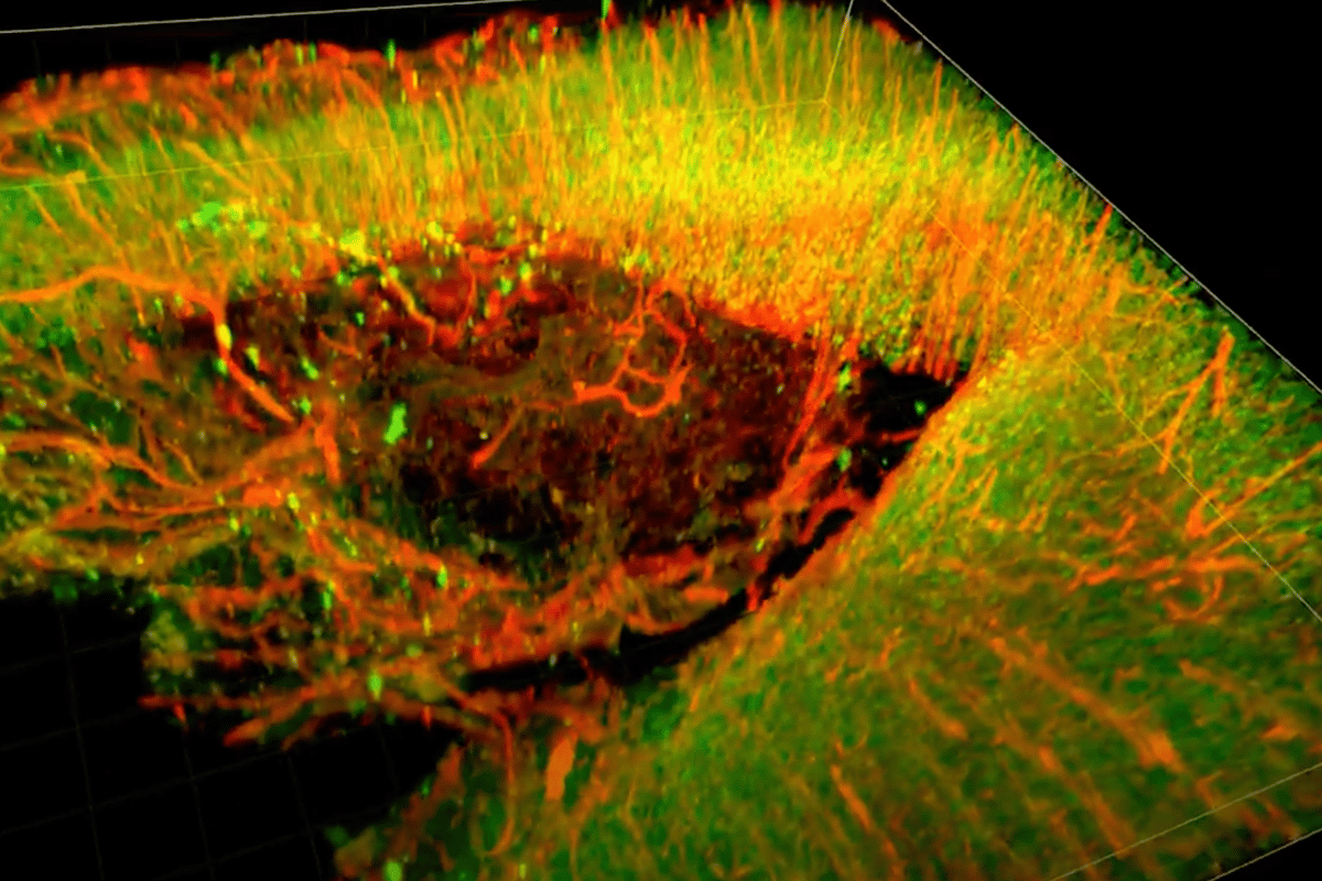 "A 3D image of a recovering injured rat brain treated with a newly developed ""brain glue"""