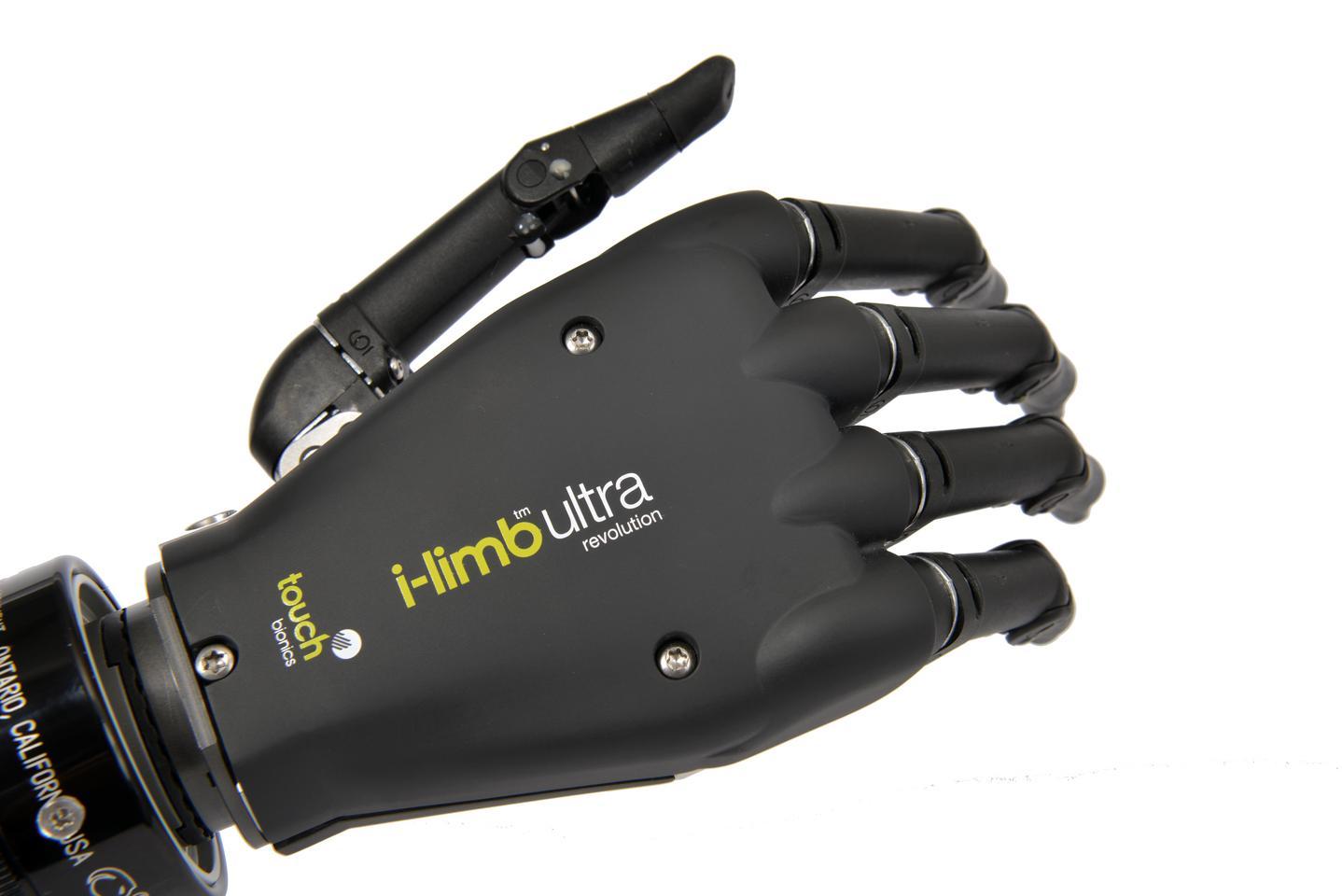 The i-limb ultra revolution prosthetic hand