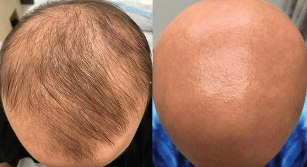 Within weeks of starting the eczema treatment the patient unexpectedlydiscovered hair growth on her scalp