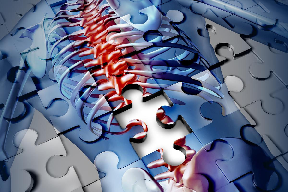 Researchers at UCLA have developed an injectable scaffold that improves axon regeneration in mice with spinal cord injuries