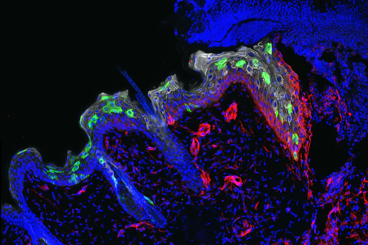 The stem cells (green) move into, and help heal, a wound faster when it has previously suffered a bout of inflammation