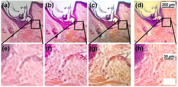 Images a) to c) show human skin and hair follicle captured through a microscope at magnifications of 40, 100 and 200, while d) is an image captured with a smartphone using a PDMS lens and Nokia Lumia 520 – the lowermost row shows the regions magnified (Image: University of Houston)