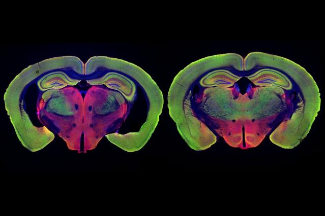 At left is the brain of a mouse genetically programmed to develop Alzheimer's disease. At right, the brain of a mouse programmed to develop the disease, but treated with noninvasive visual stimulation, shows much less neurodegeneration