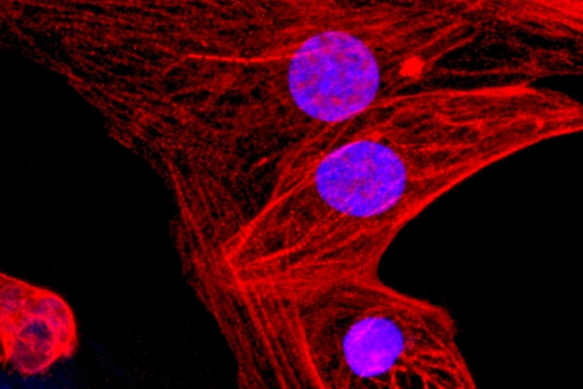 "Human heart muscle cells derived from the new CRISPR-engineered ""universal"" stem cells"