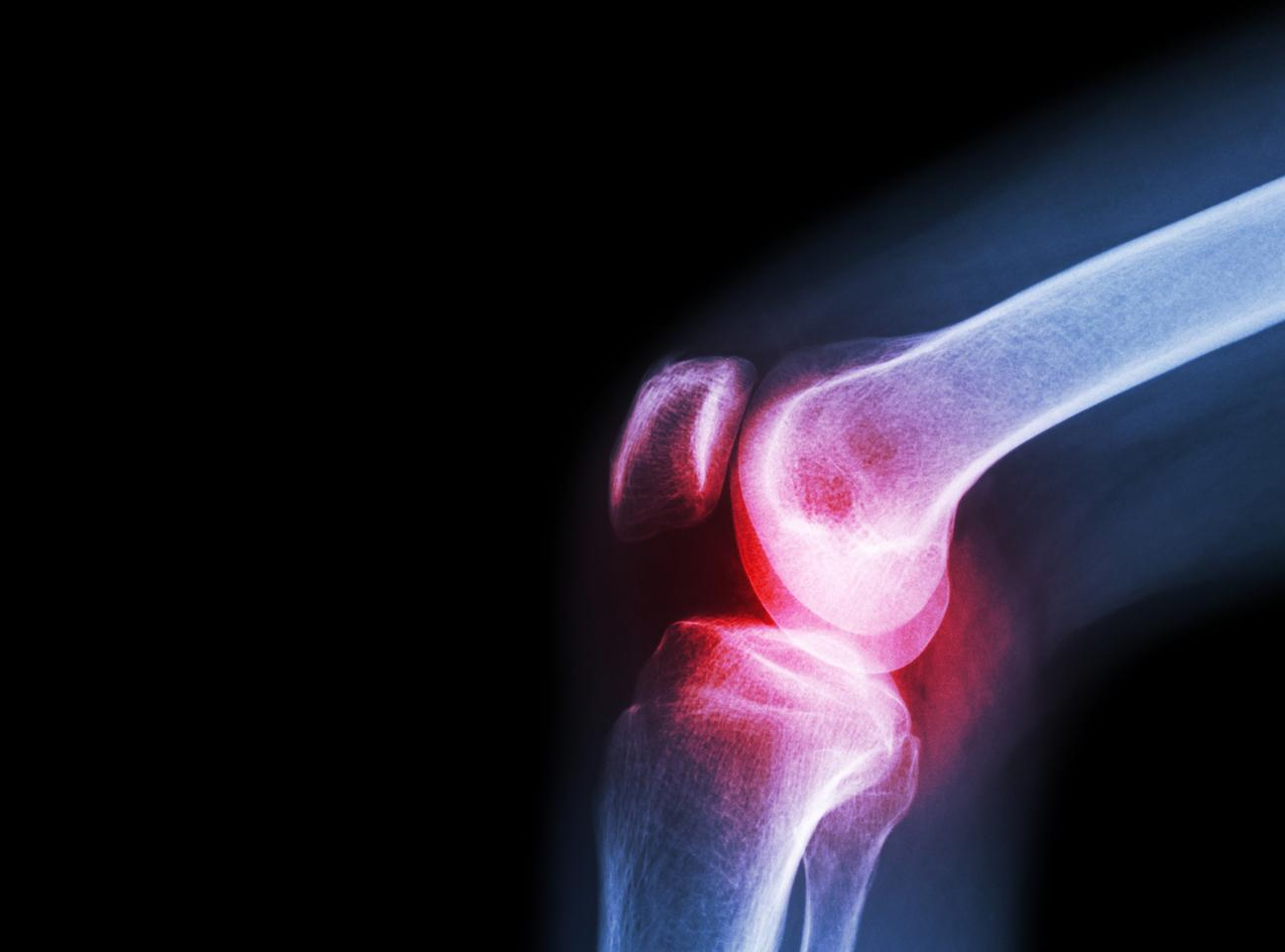 Conditions like osteoarthritis are characterized by the deterioration of cartilage in joints, but a new technique involving a cryogel scaffold to assist implanted stem cells could offer a way to reverse the process