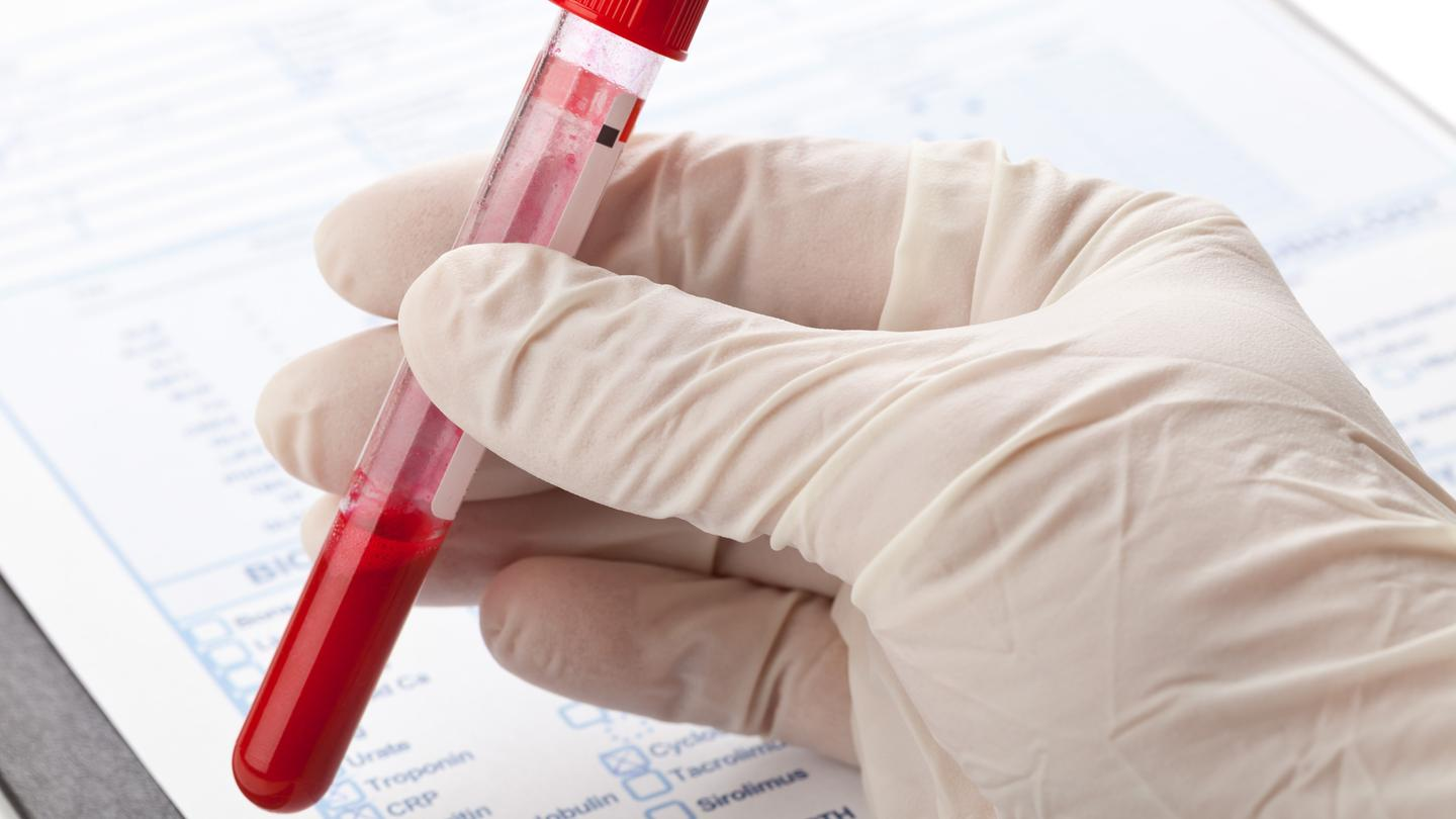 Research suggests a blood test to detect depression is possible (Photo: Shutterstock)