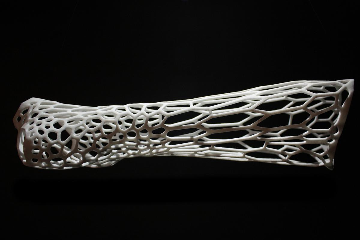 Jake Evill's Cortex concept uses 3D printing technology to create a bespoke exoskeletal cast