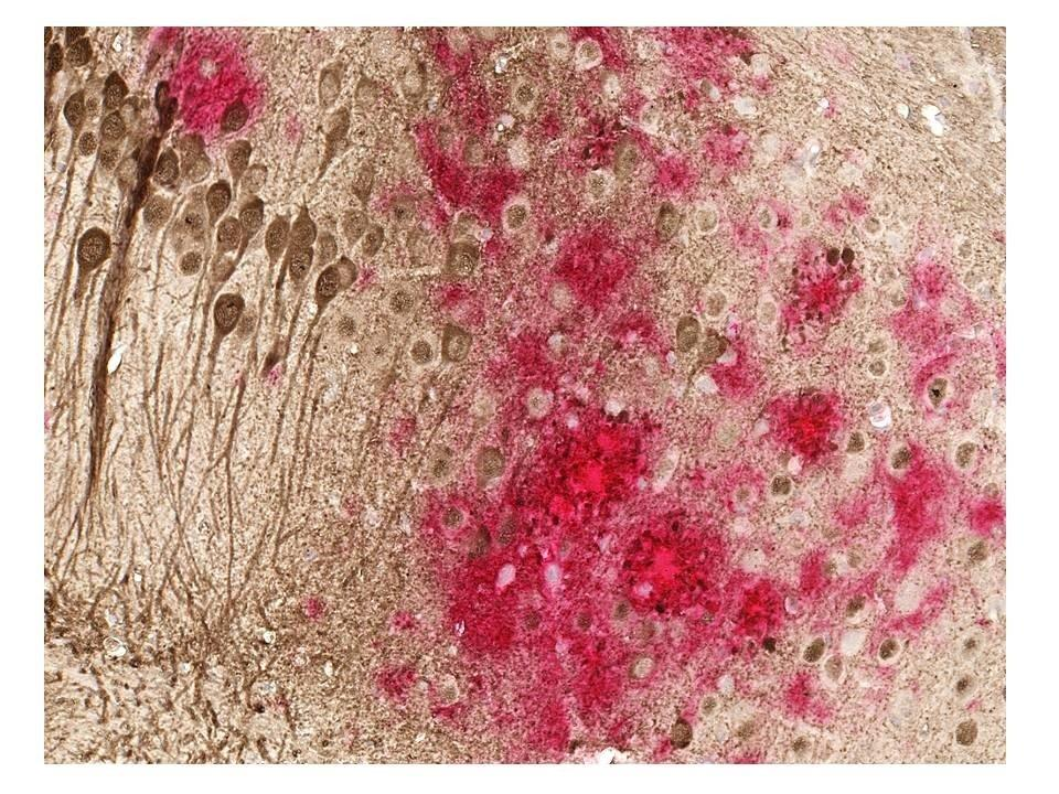 After success in three separate animal models an Alzheimer's vaccine is on the cusp of human trials. Toxic amyloid plaques (red) and tau tangles (brown) form on the brain of a mouse modeled to have the disease. A study shows a DNA vaccine reduces both amyloid and tau in the mouse AD model, with no adverse immune responses