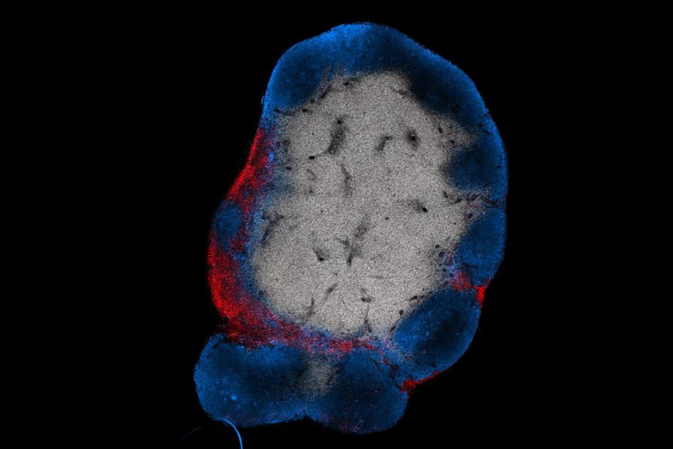 An MIT team has developed a vaccine to stimulate T cells (red) to attack solid tumors in mice