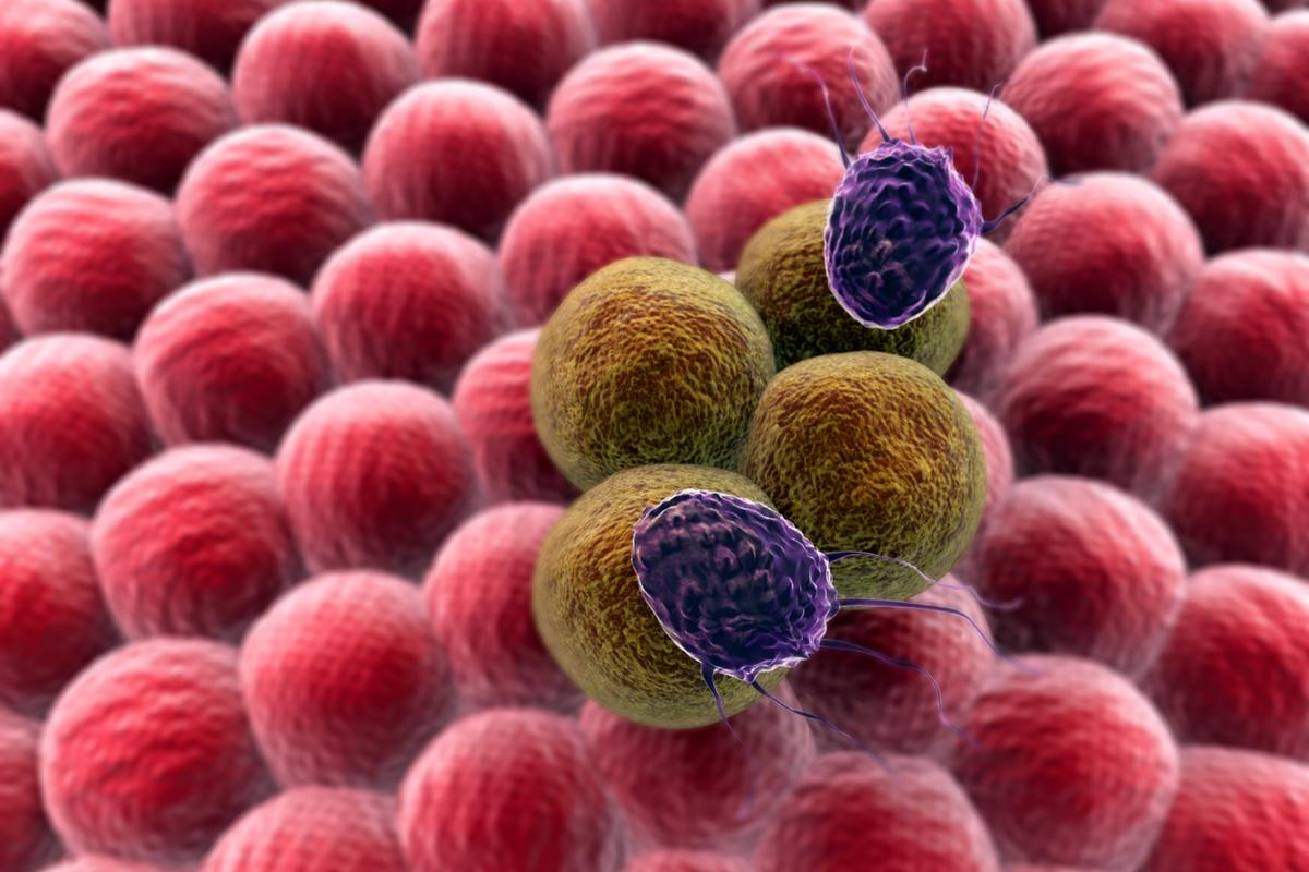 Researchers have discovered that primary tumors can prevent the growth of secondary tumors by sending the immune system after them