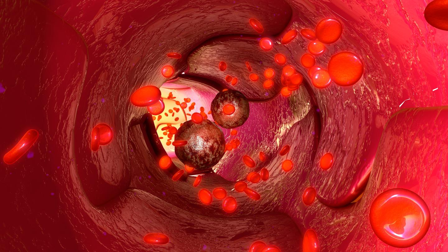 The new research uncovered the molecular mechanism linking high cholesterol with cancer metastasis