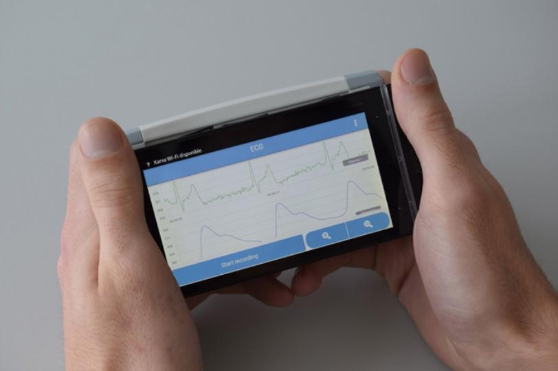 CardioSense uses two metal contact plates, which could be incorporated into various types of devices