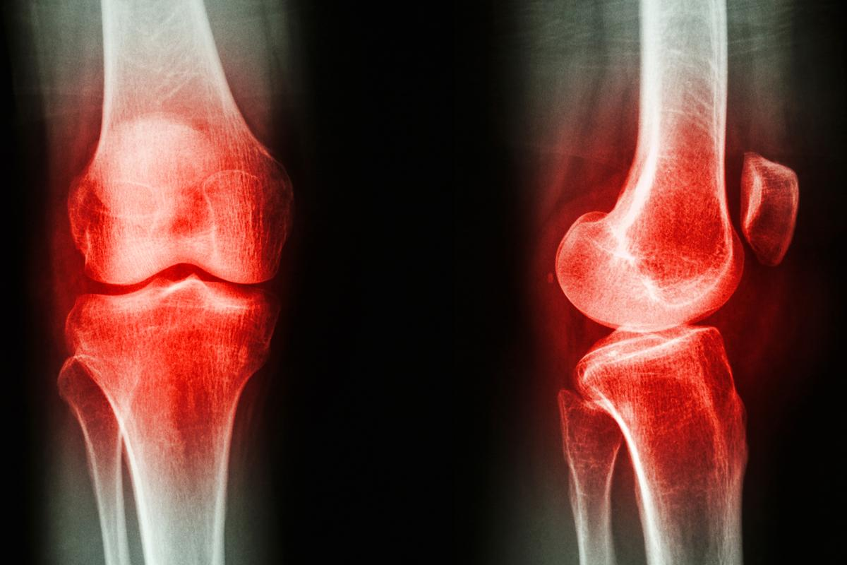 An algorithm developed by University of Warwick researchers can detect and differentiate between osteoarthritis and rheumatoid arthritis via biomarkers in the blood (Image: Shutterstock)