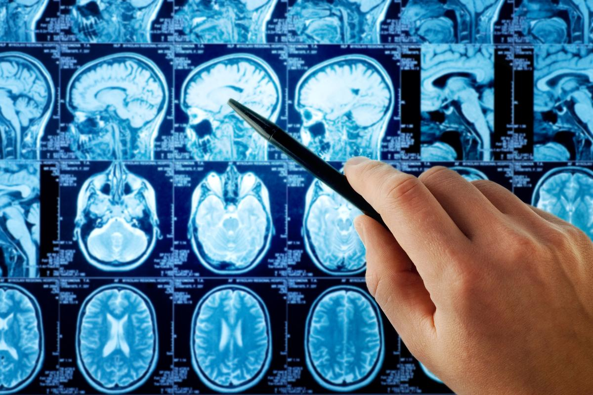Age differences in brain activity may have been overestimated in the past because of noise in fMRI signals (Photo: Shutterstock)