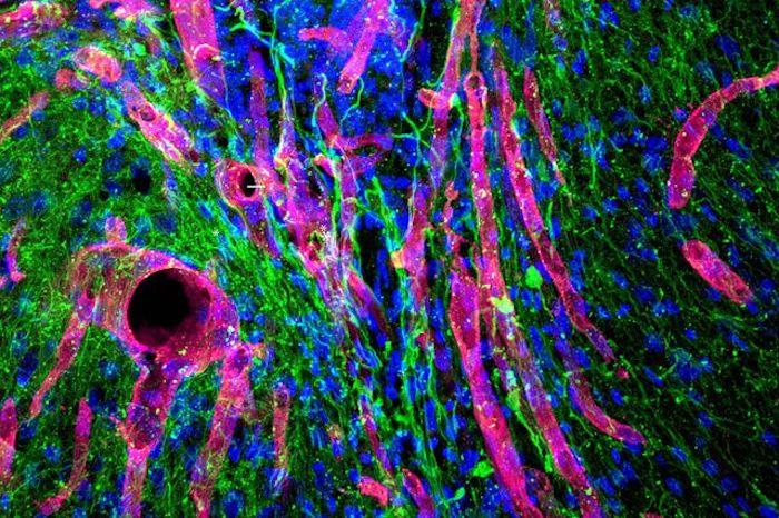 A photomicrograph of the new tissue grown in the stroke-damaged cavity of a mouse brain: the red tubes are blood vessels while the green sections are nerve fibers