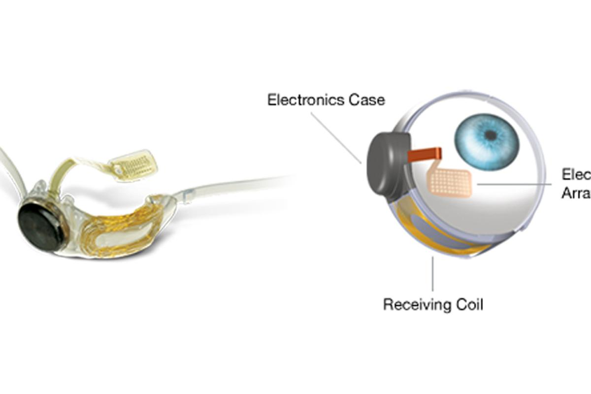 The prosthesis that is implanted in and on the eye to give functional vision to the blind