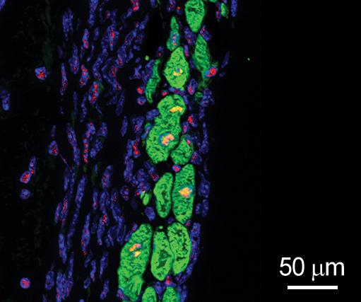 New heart muscle cells (green with yellow nuclei) grow in the damaged region of a mouse heart treated by the patch loaded with FSTL1