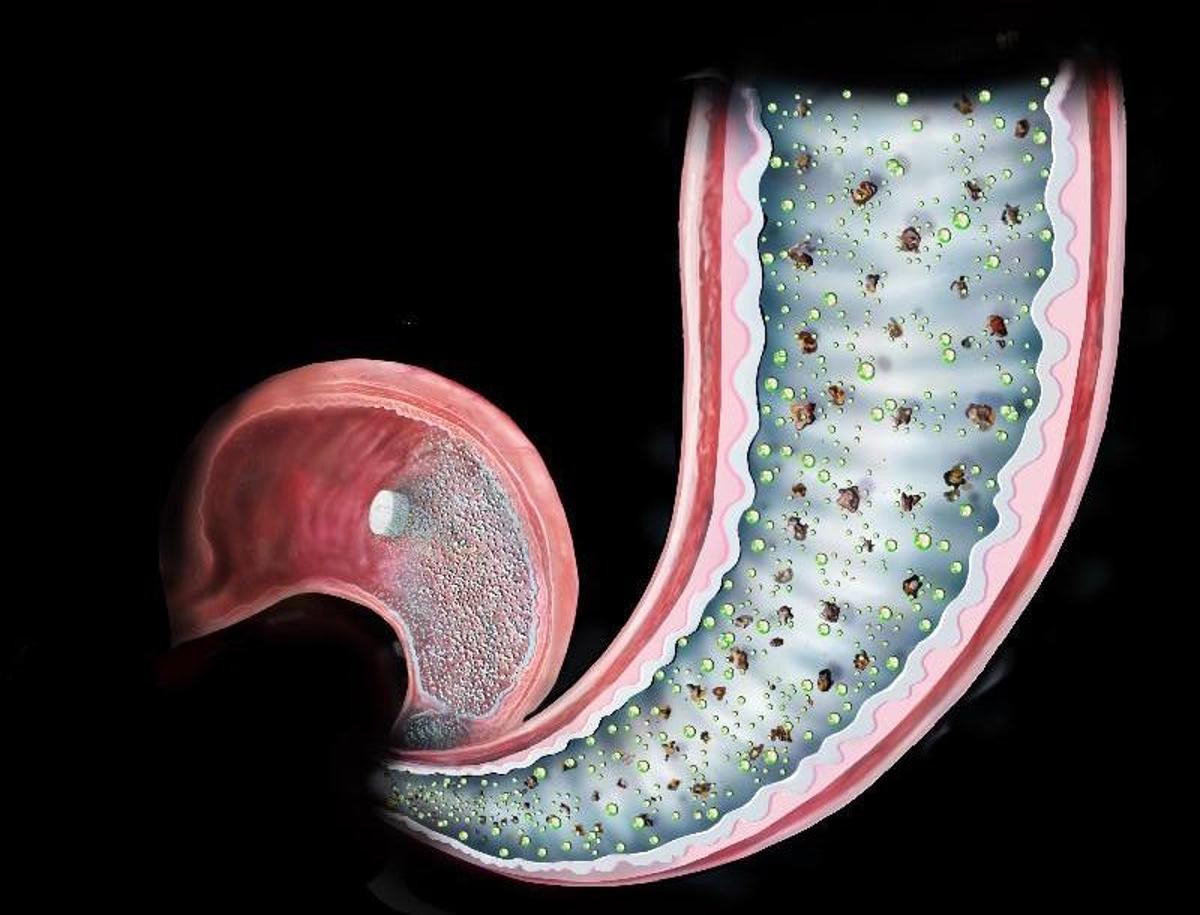 An illustration of how the pill coats the intestine mimicking the effect of bariatric surgery