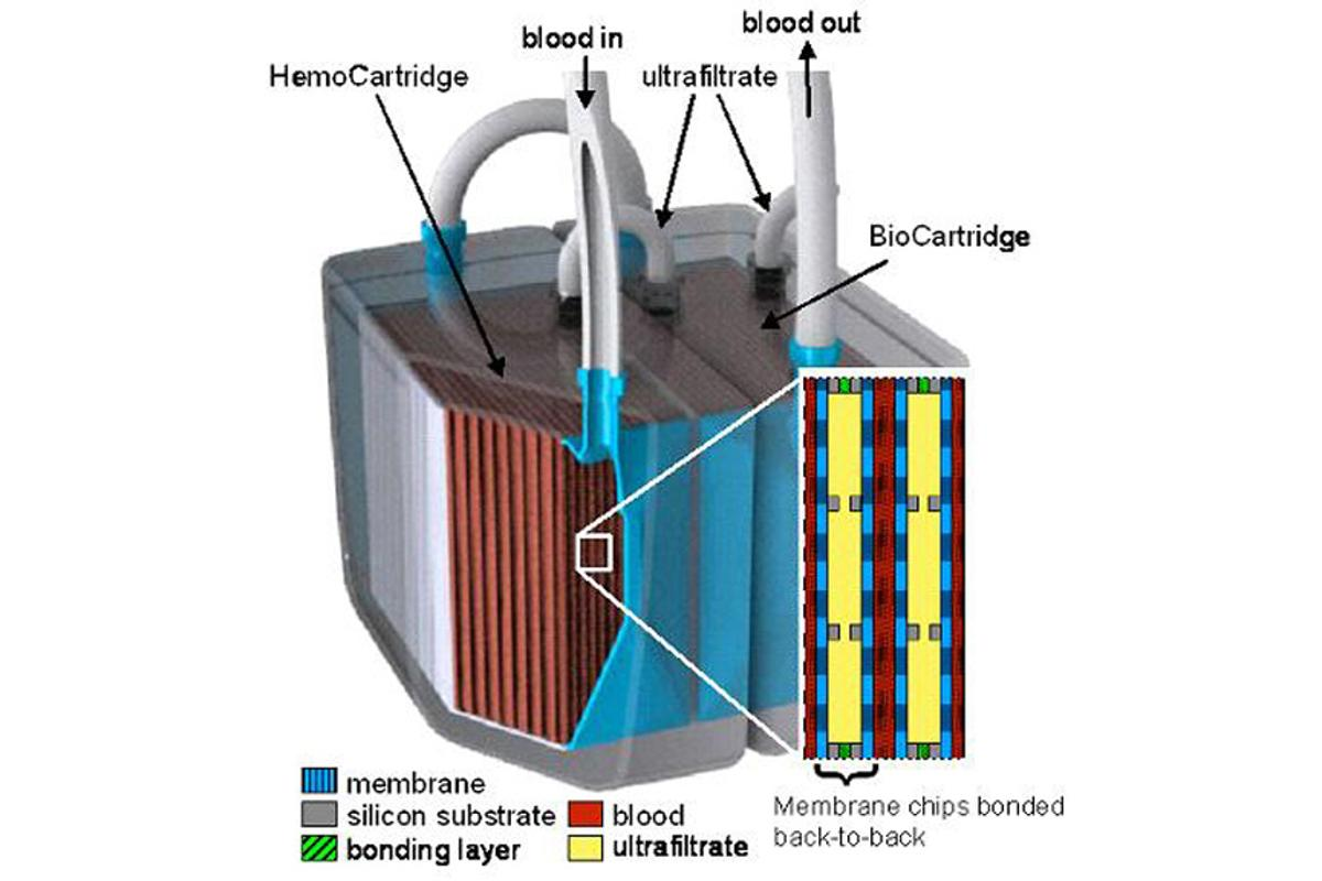 A model of the implantable bioartificial kidney shows the two-stage system