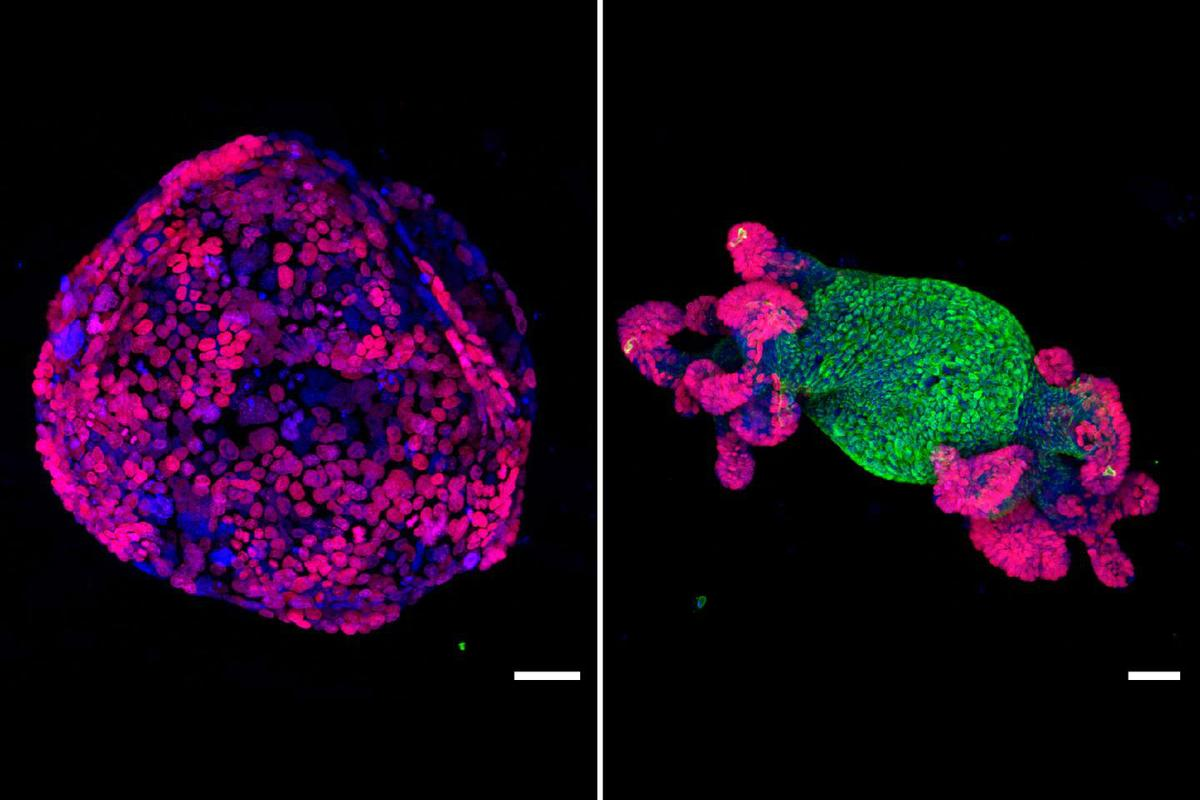 A cancerous intestinal growth (left) was restored to normal function (right) after researchers reactivated a key gene