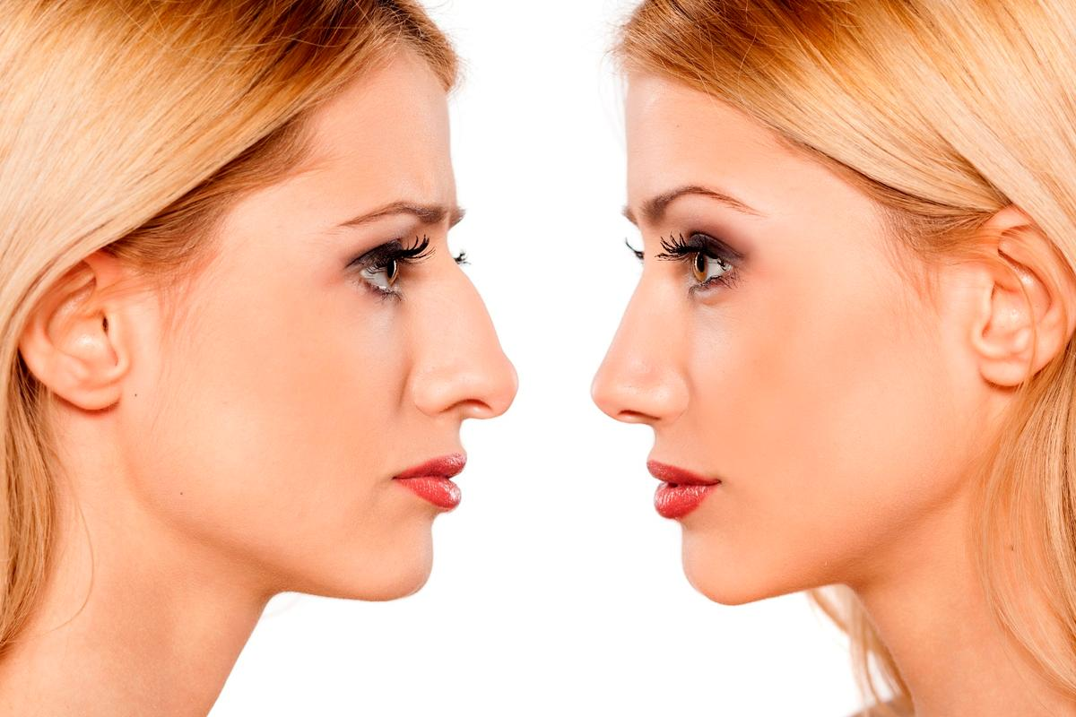 While the technology could be utilized for cosmetic procedures such as rhinoplasty (pictured above), it may also find use on tendons or corneas