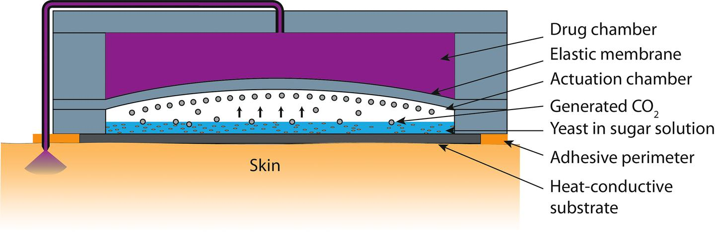 A diagram of Purdue's transdermal microneedle patch