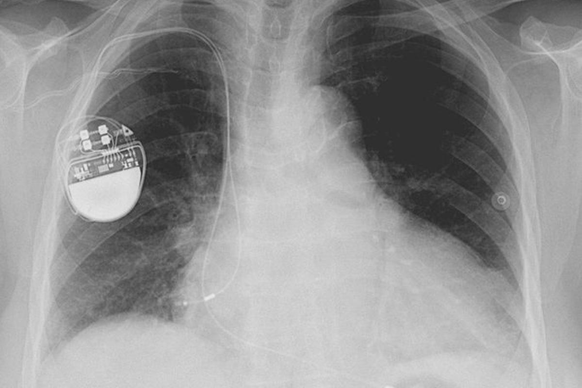 Scientists have developed heart tissue that contracts when exposed to light, which could pave the way for pacemakers that control the heart using light pulses (Image: Lucien Monfils)