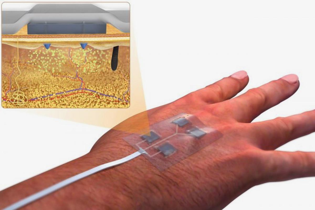 "A diagram of the ""smart"" bandage, with its miniature needles pictured top-left"