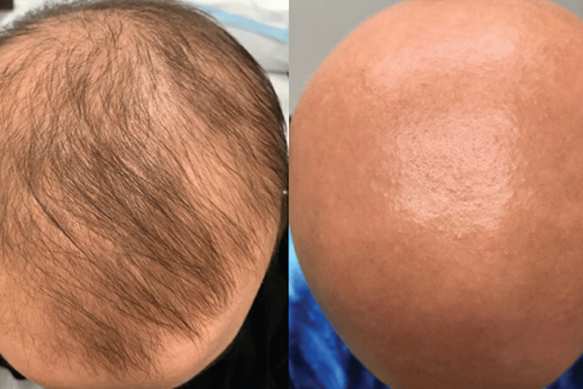 Within weeks of starting the eczema treatment the patient unexpectedly discovered hair growth on her scalp