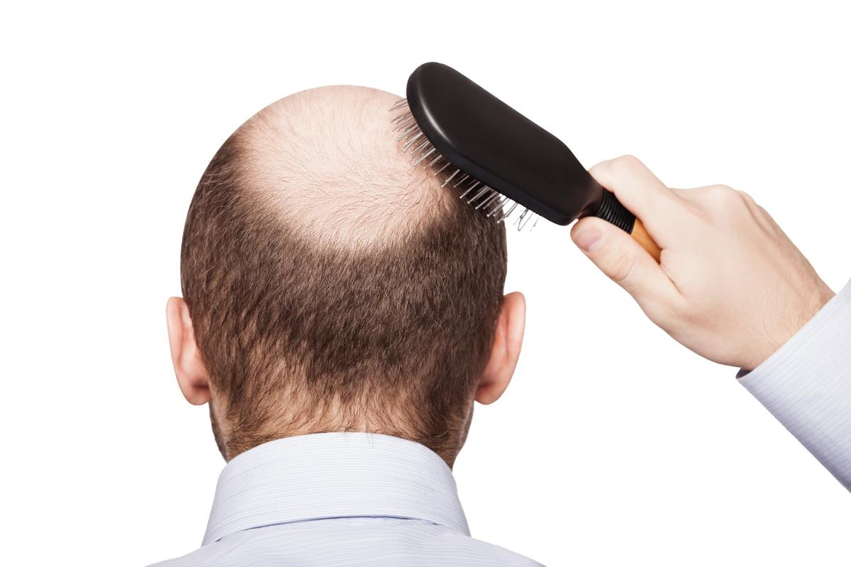 A 50-year-old drug has opened up a new avenue in the quest for a baldness cure