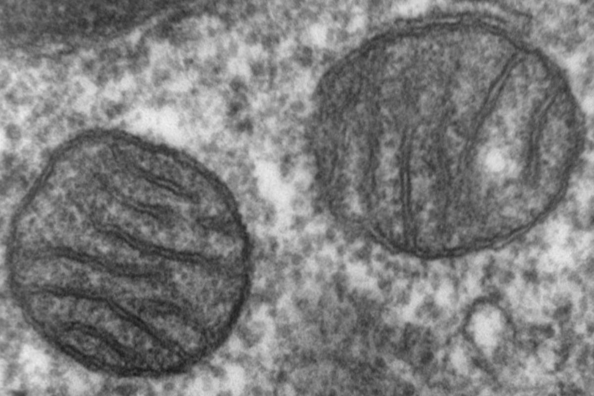 The new findings strongly suggest that mitchondria – often referred to as the powerhouses of cells – play a role in the development of Alzheimer's