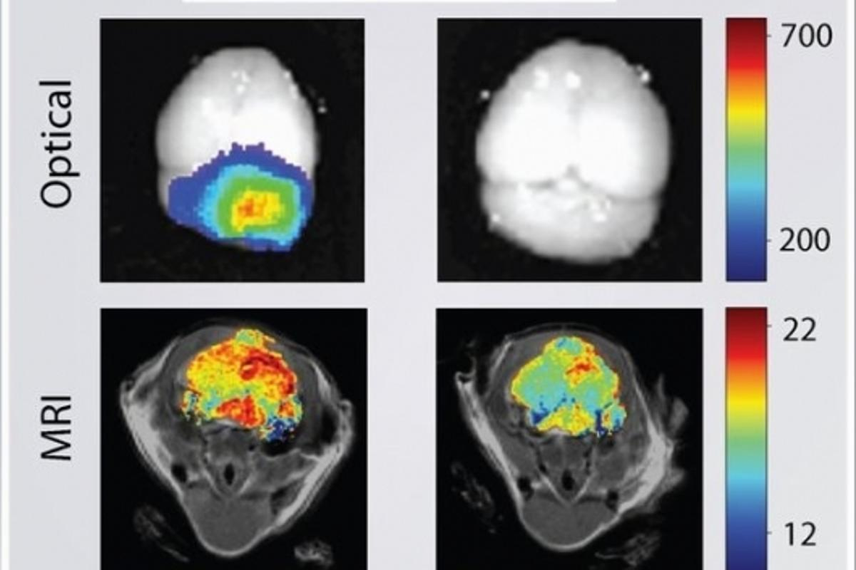 A mouse brain tumor imaged using nanoparticles (left) compared to conventional techniques (right)