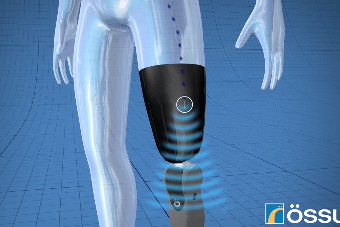 The Ossur system uses implanted sensors sending wireless signals to the artificial limb's built-in computer