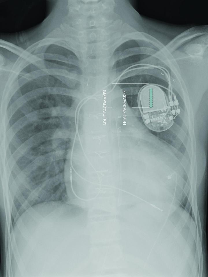 The relative sizes of a standard pacemaker and the new fetus-sized model (Image: CHLA)