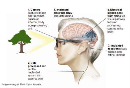 How BVA's retinal implant works (Image: BVA)