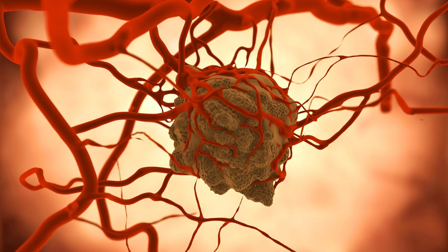 A modified version of C. noyvi bacteria has been found to produce an anti-tumor response throughout a series of studies (Image: Shutterstock)