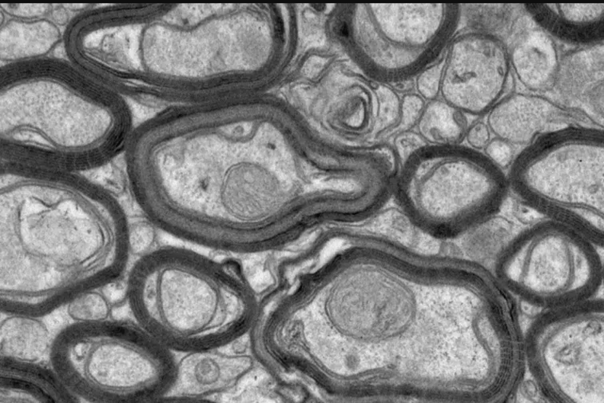 A new synthetic peptide called TDP6 helps regenerate myelin damaged by MS