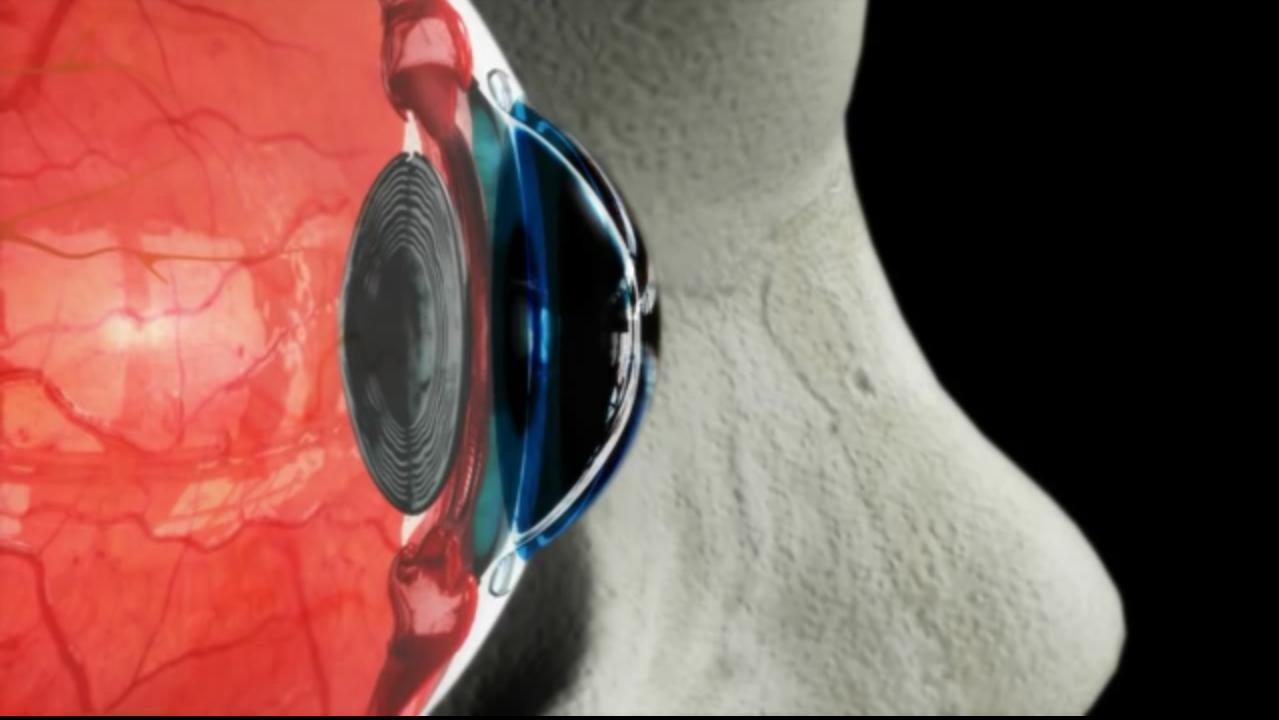 The adaptive zoom system is based on the focusing technique of human eye
