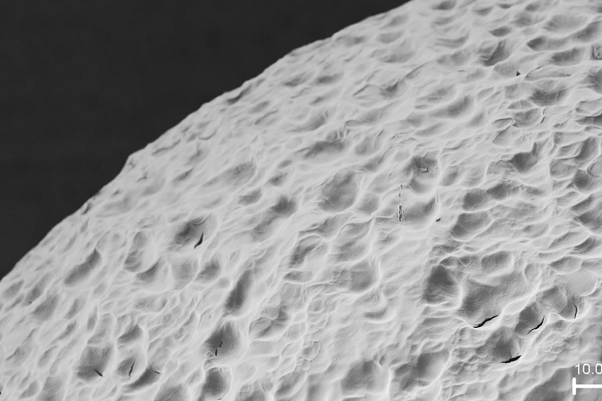 The researchers used a material called alginate, seen here in an electron microscopy image, to shield insulin-producing cells from the body's immune system