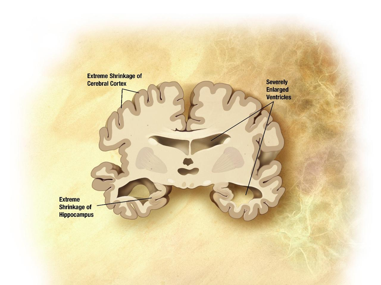 Cross-section of a brain affected by Alzheimer's disease