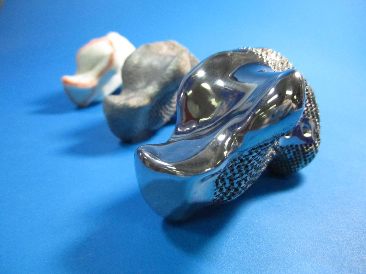 A 3D printed titanium implant has replaced the heel bone of a 71-year-old cancer (Photo: Anatomics)