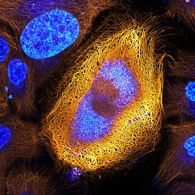 The winning image of the Nikon Small World Photomicrography Competition shows a skin cell expressing an excessive amount of the keratin protein