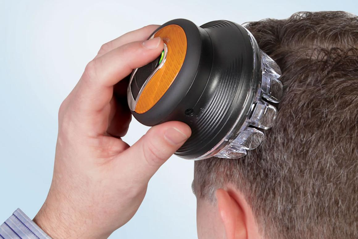 The Single Handed Barber uses a rotary system to allow users to cut their own hair evenly with one hand
