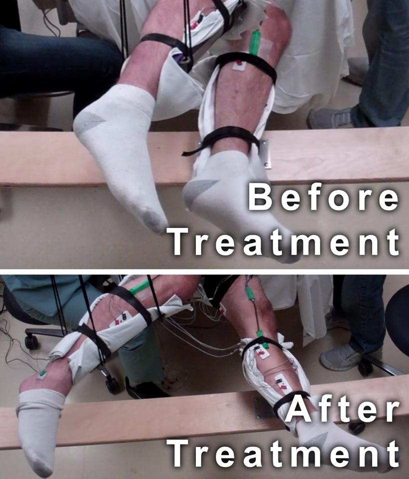 Five paralyzed men treated with a non-invasive form of spinal stimulation gained significant voluntary movement of their legs